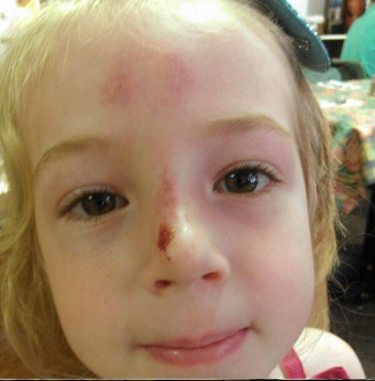E's face injury