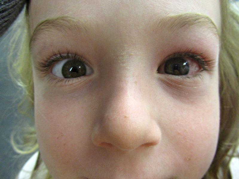 E's eye