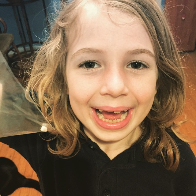 E loses her 6th tooth